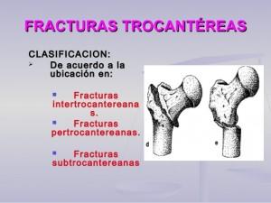 20-fractura-femirtibiaperone-10-638